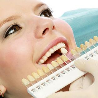 Chất lượng của răng sứ kim loại thường