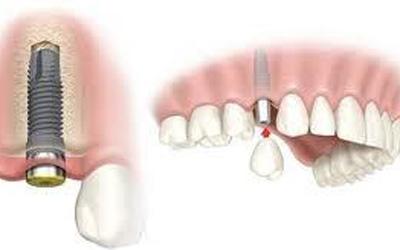 Trồng răng implant là gì?