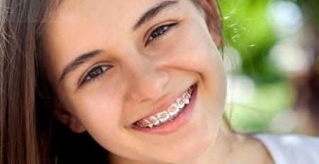 Mặt có lợi khi cho trẻ niềng răng sớm