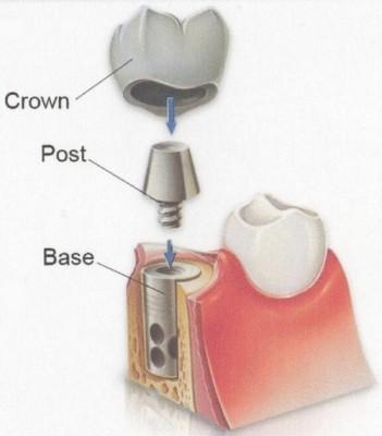 Phục hình thẩm mỹ với phương pháp trồng răng