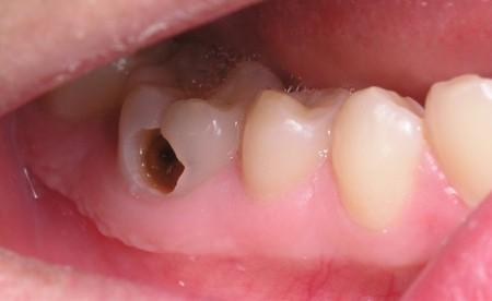 Quy trình trám răng