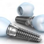 Tại sao cấy ghép trụ implant có chi phí cao?