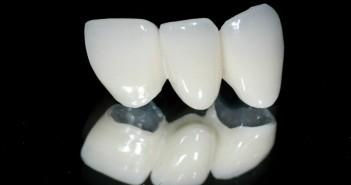 Răng sứ thủy tinh E.max Press có tốt không