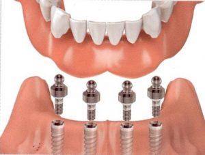 Cấy ghép trụ implant có ảnh hưởng sức khỏe không?-2