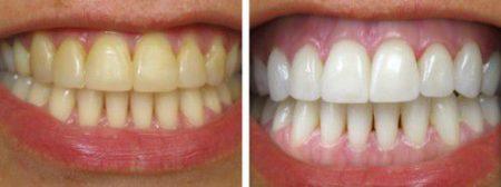 Làm trắng răng tự nhiên cho nụ cười rạng rỡ 6
