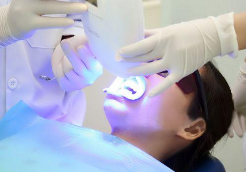Tẩy trắng răng có nguy hiểm không? - Xin lời khuyên 1