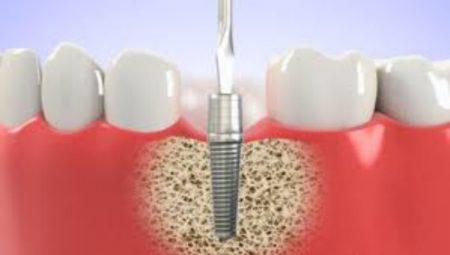 Làm thế nào để biết một địa chỉ trồng răng implant tốt? 3