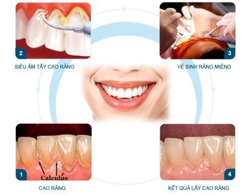 Cạo vôi răng có tác dụng gì? 2