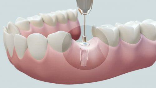 Cấy ghép răng implant là gì? 1