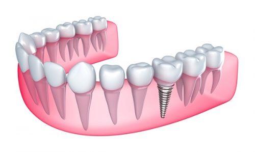 Chi phí trồng răng sứ vĩnh viễn 1