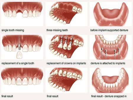 Implant nha khoa là gì? 1