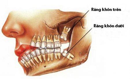 Mọc răng khôn phải làm sao thưa bác sĩ? 1