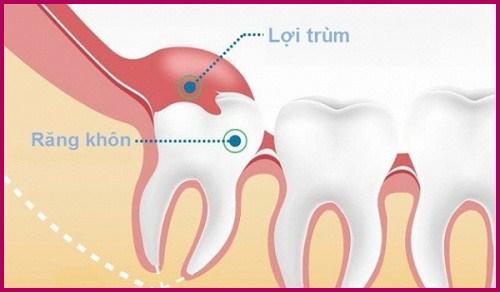 Nhổ răng khôn ở đâu tốt nhất tại Hồ Chí Minh? 1