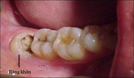 Răng khôn bị sâu có nên nhổ không? 1