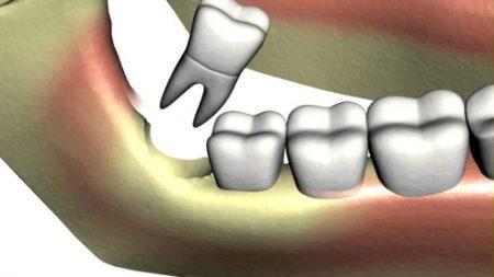 Răng khôn mọc lệch ra má phải làm sao? 2