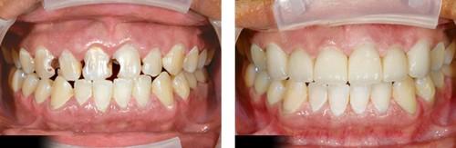 Bọc răng sứ cho răng sâu 1