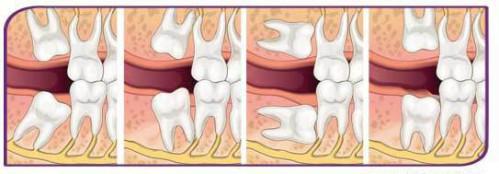 Mọc răng khôn có ý nghĩa gì? 2
