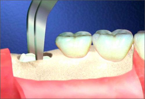 Răng khôn mọc ngầm có nên nhổ không? 3