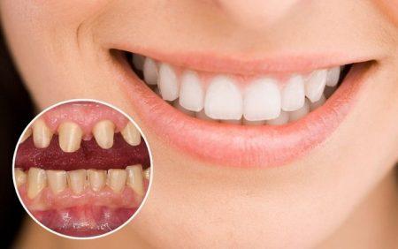 Mài bọc răng sứ có đau không? 1
