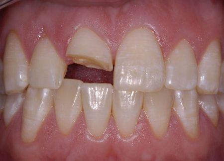 Mài bọc răng sứ có đau không? 3