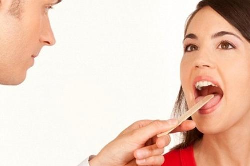Làm răng sứ veneer 4