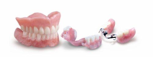 Trồng răng giả 3