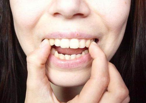 Niềng răng hô 1
