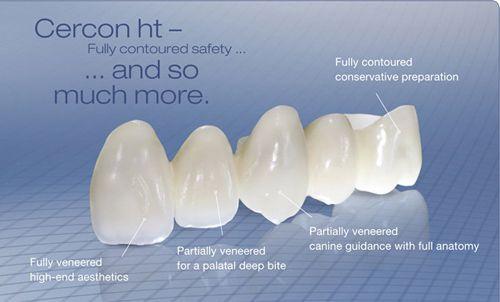 Răng sứ cercon 3