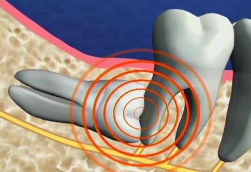 Thực hiện nhổ răng khôn hàm dưới có nguy hiểm không? 2