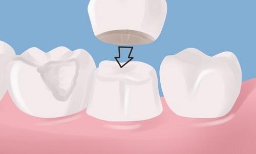 Phương pháp bọc răng sứ không cần mài răng hiệu quả nhất cho bạn-3