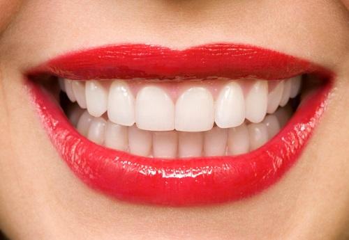 Bọc răng sứ ở đâu đẹp - Nên chọn bệnh viện nha khoa hay trung tâm-1