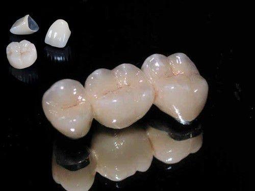 Bọc răng sứ titan có tốt không? 3 ưu điểm để chứng minh-1