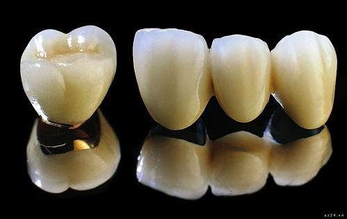 Có nên bọc răng sứ titan? Ưu điểm nào nên bọc răng sứ titan-1