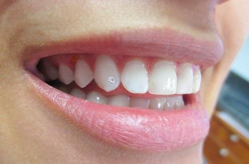 Đính đá vào răng có hại không? Lời khuyên đánh giá từ khách hàng1