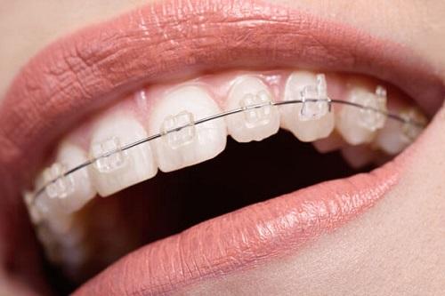 Niềng răng 1 hàm có đau không với mắc cài sứ? 1