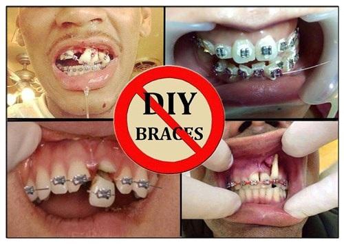 Cách xử lý niềng răng bị hỏng cho bạn-1