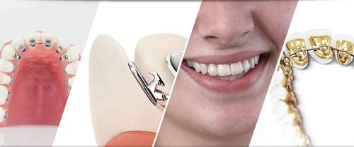 Niềng răng mặt trong giá rẻ có nên thực hiện không? 2