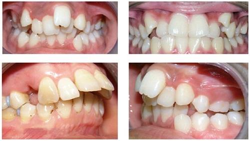 Trường hợp niềng răng lệch hàm có khó không?-1