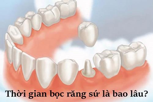 Quá trình làm răng sứ mất bao lâu là hoàn thành?-1