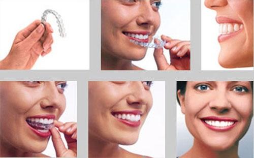 Niềng răng hô giá rẻ có đảm bảo hiệu quả niềng không?-3