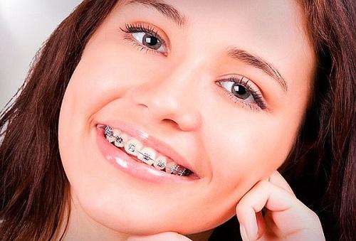 Niềng răng khểnh bao lâu là có kết quả?-3
