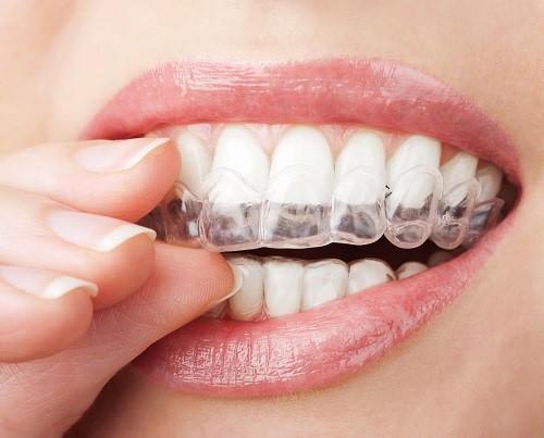 Niềng răng trong suốt có phải nhổ răng không? 1