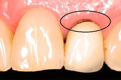 Dấu hiệu răng sứ bị hở nguyên nhân và cách khắc phục-1