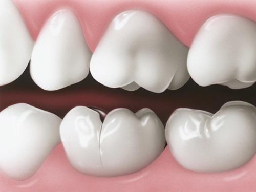 Răng sứ bị nứt phải làm sao để khắc phục?-1