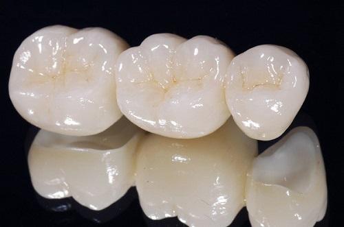 Răng sứ bị nứt phải làm sao để khắc phục?-2