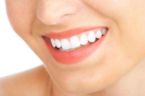Răng sứ titan có mấy loại phổ biến trên thị trường hiện nay-1