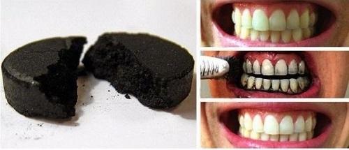 Tẩy trắng răng bằng than hoạt tính hiệu quả ra sao? 2