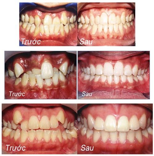 Có nên trồng răng sứ titan không? Ưu và nhược điểm-2