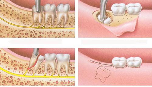 Nhổ răng khôn hàm dưới bao nhiêu tiền là thực hiện được? 3