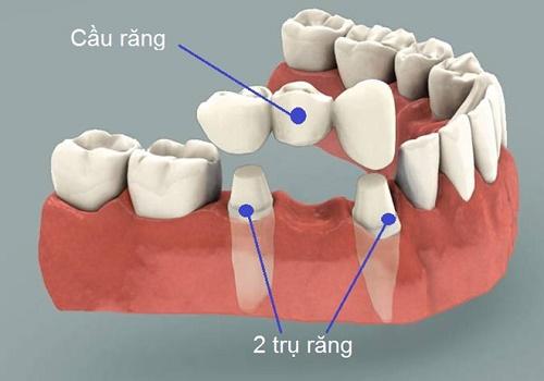 Trồng răng bằng cầu răng thực hiện ra sao? 1